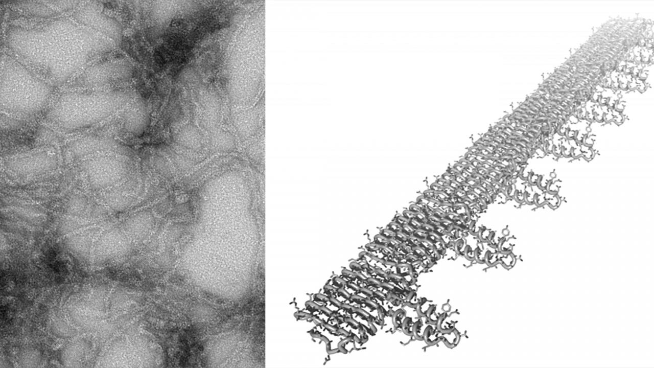 Composite of electron microscope image and rendering of fibrils.